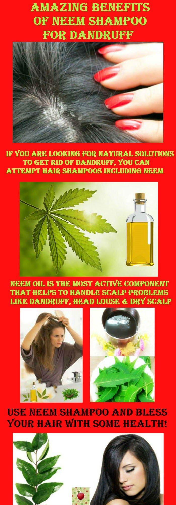 Amazing Benefits Of Neem Shampoo For Dandruff