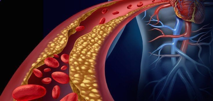 Cholesterol Cure - Colesterol e a atividade física - The One Food Cholesterol Cure