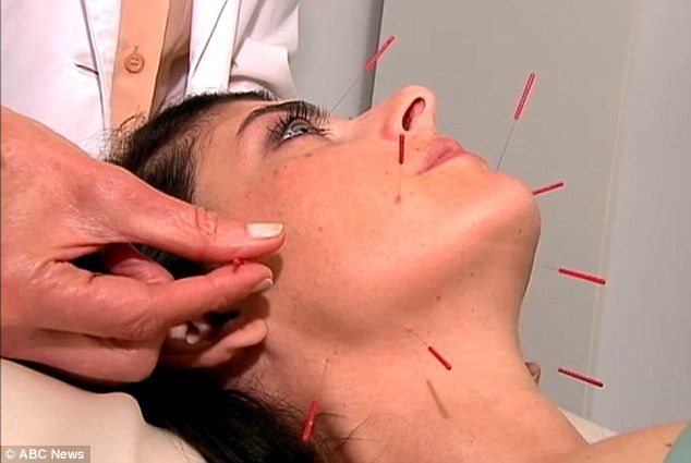 Non-surgical: AcuFacial is a process that involves strategically placed tiny needles on the body and face, which has doctors claiming patients can come away looking five to ten years younger