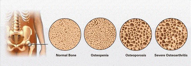 osteoporosis, tulang keropos, tulang keropos karena obat peninggi badan, bahaya obat peninggi badan bagi tulang, waspada obat peninggi badan, tulang rapuh, kalsium yang tidak dibutuhkan tubuh, osteopenia, osteoporosis, severe osteoarthritis