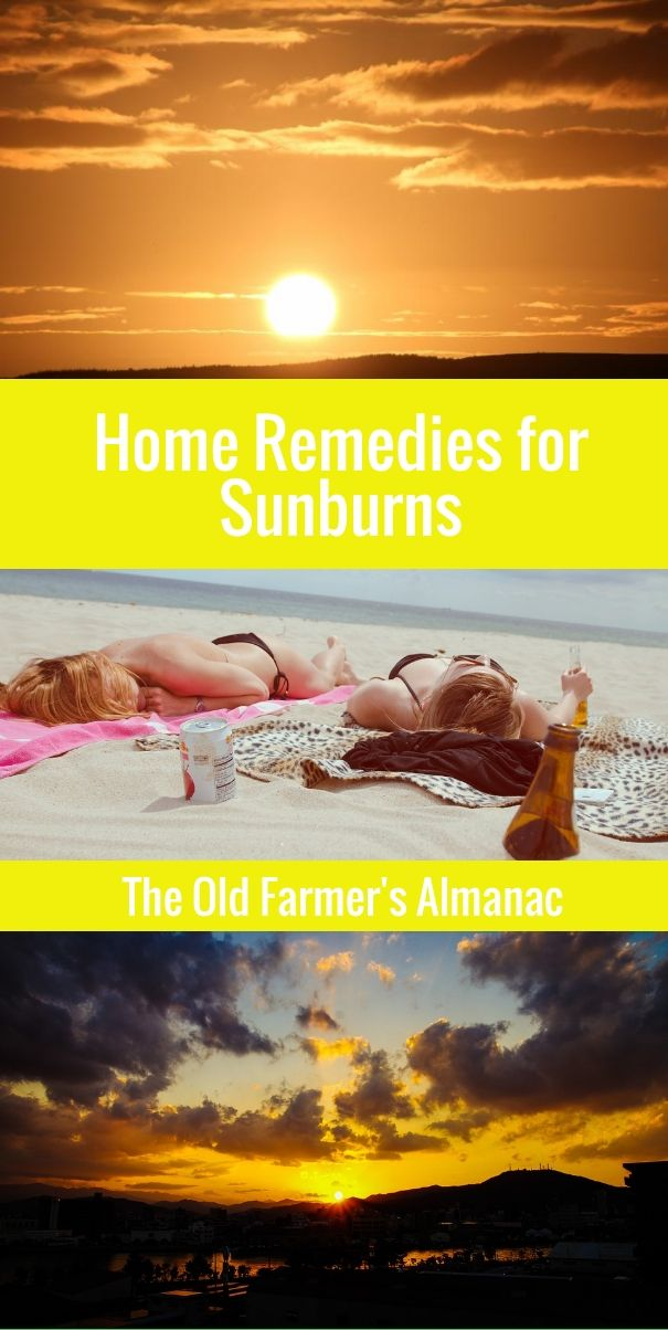Home Remedies for Sunburn Treatment