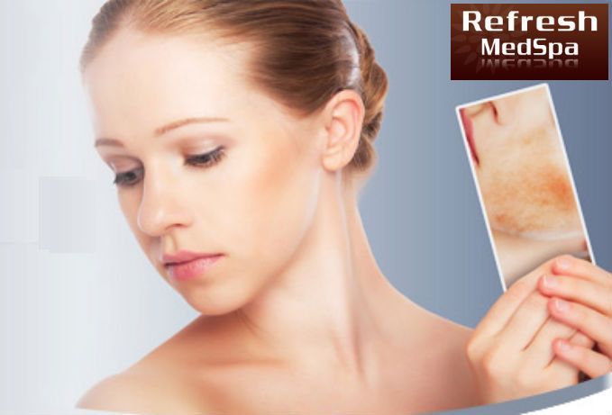Refreshmedspa.com provide the best laser hair removal treatment in Lodi. They  offer a variety of cosmetic laser and aesthetic treatments using cutting edge, new millennium technology. For more details, explore http://www.refreshmedspa.com/