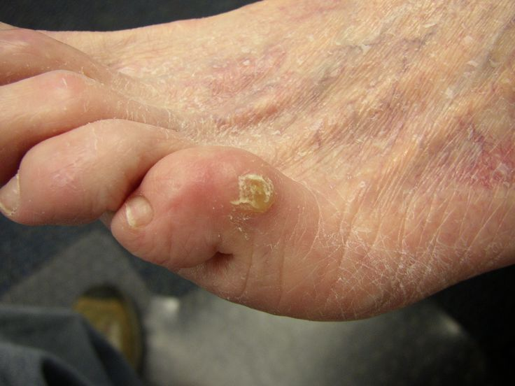 How To Get Rid Of Foot Corns Naturally