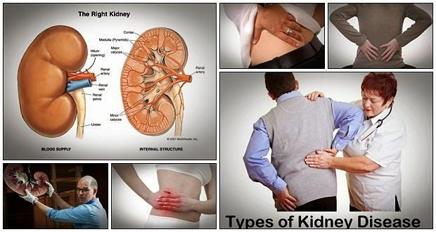 kidney infection treatment