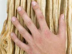 Dyshidrotic Dermatitis Symptoms