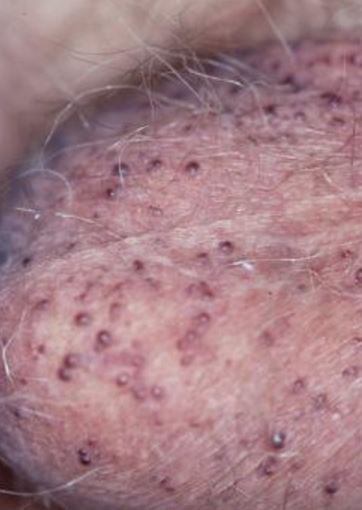 It is quite embarrassing and disturbing for males to have blood blister on scrotum, testicles or balls. What causes small blood blister on balls that won't stop bleeding? In this page, we shall cover angiokeratomas of the scrotum. Find more on the causes, pictures and how to treat. Blood blister on balls or scrotum are