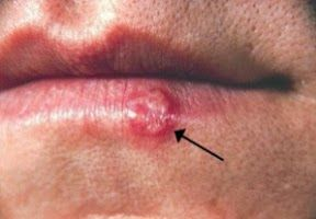 Visit our site http://www.getridofherpesguide.com for more information on Pictures Of Herpes.If you think there is a chance you have herpes, you will of course be very anxious to find out if you do or don't have herpes. Using herpes pictures is one way to do an initial self diagnosis of yourself. With the internet, you can find some pictures of herpes right now, to compare to any sores you have, and make your own diagnosis.