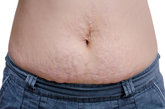 How to get rid of stretch marks? Stretch marks are lines on the skin shading found on the bulkiest segments of the body contrasting fit as a fiddle fr...