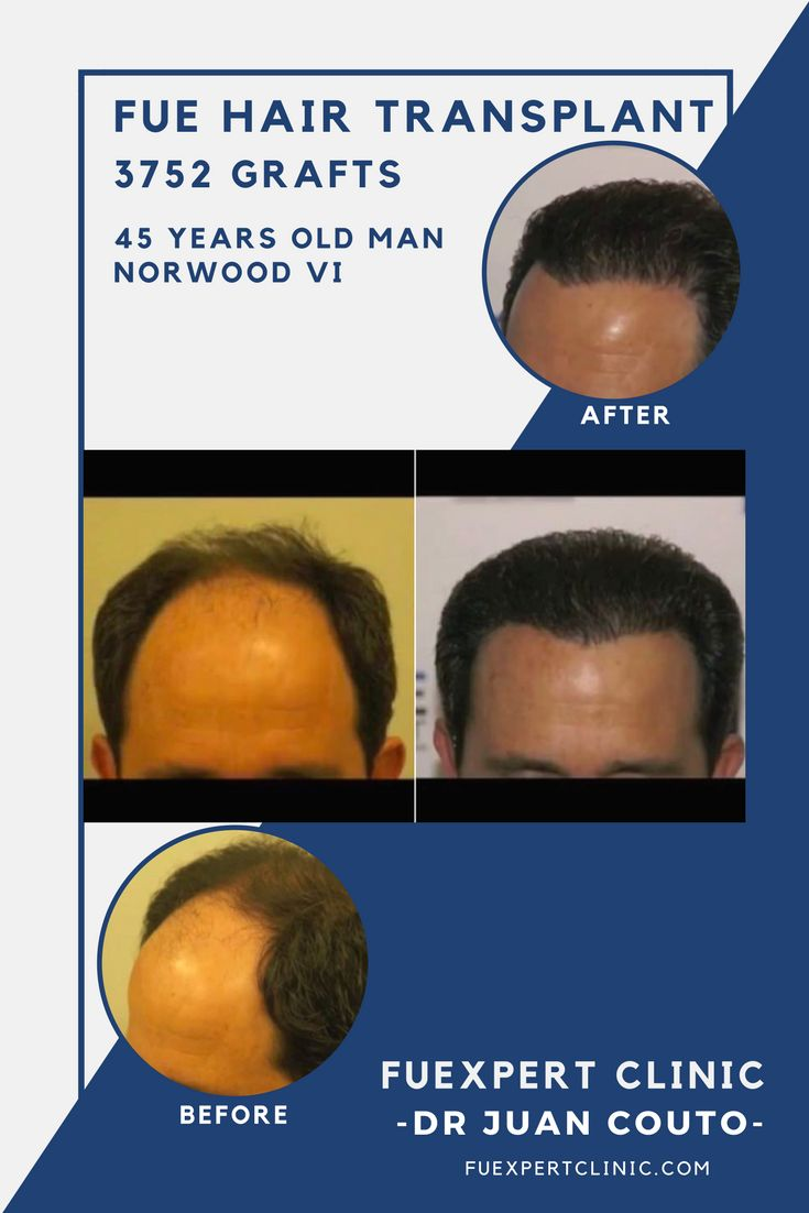 3752 Grafts - FUE Hair Transplant at FUExpert Clinic by Dr Juan Couto - Madrid, Spain