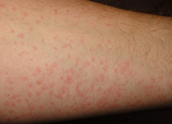 Chronic Hives Treatment Hives Pinterest Search And