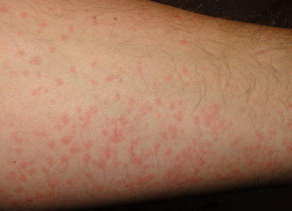Chronic Hives Treatmen...