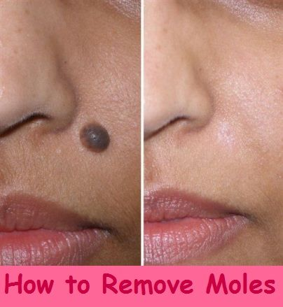 How To Get Rid Of White Moles On Face Naturally