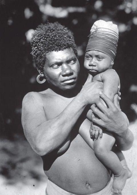 Criança da etnia Vanuatu com crânio enfaixado para crescer em forma alongada, foto de 1919. A pratica era adotada ainda no primeiro mês de vida, quando o crânio é mais maleável, a cabeça da criança era pressionada com placas de madeira podendo ainda ser enfaixada com tecido. O aparato era mantido de seis meses até os dois de idade.