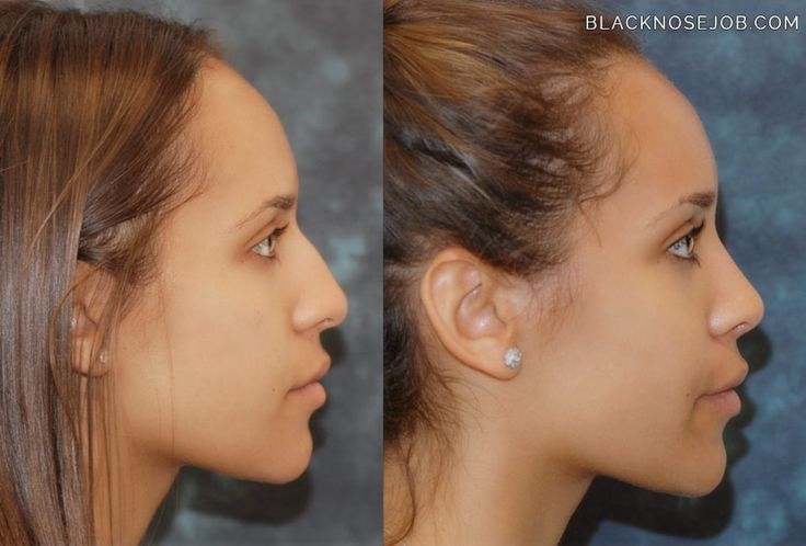profile before and after nose jobs | Dr. Hamilton's method leaves the nasal tip with a natural refinement ...