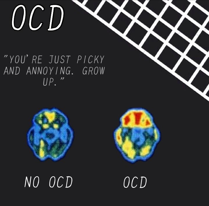 scan of a normal brain vs. an OCD person's brain... mental ...