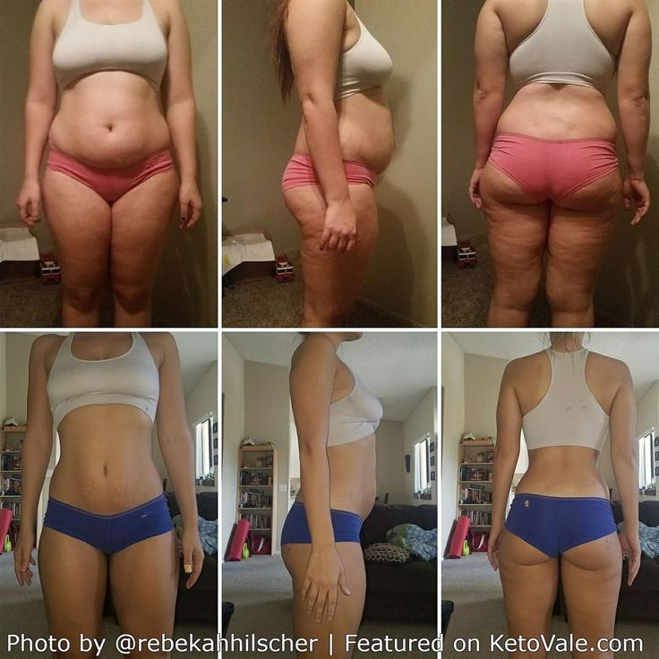 Rebekah Hilscher's Keto Weight Loss Success Story before and after! #WeightLossBefore