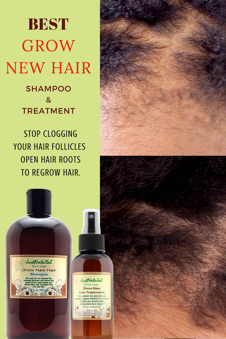 The 25 Best Hair Loss Vitamins Ideas On Shampoo And For