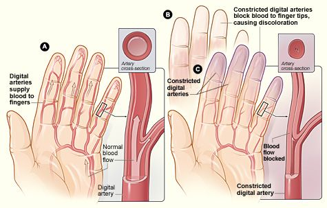 What is raynauds? In photography by the National Heart, Lung and Blood Institute.