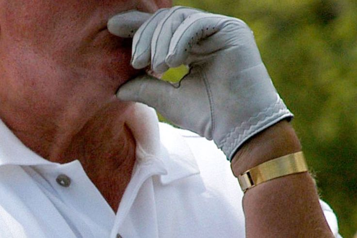 7 Pictures of Donald Trump's Swollen Forearm Threatening to Break His Watchband - .....this might explain why he gives such over-the-tophandshakes: Maybe he just can't feel his fingers