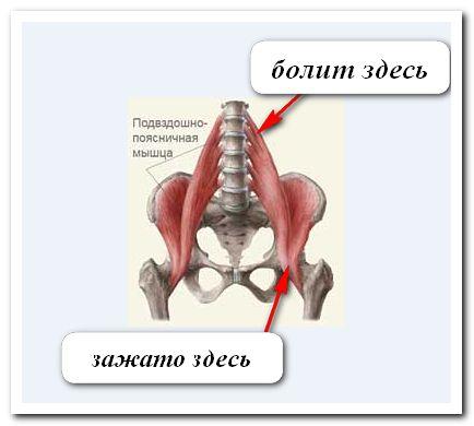 Освобождаем организм от боли (триггерные точки)