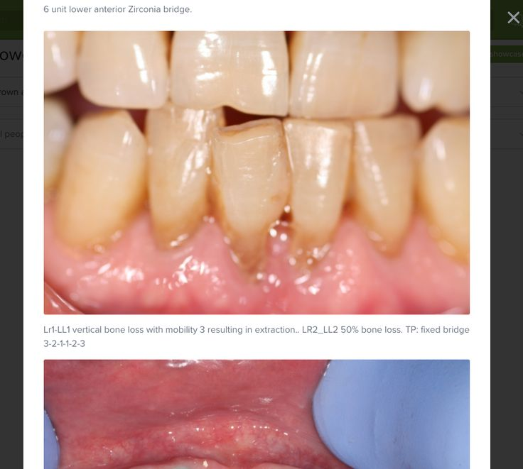 Showcase your work with ease - #DentalShowcase #ShowcaseYourDentalWork #DentalNetworking #Denteez #DentalProfessionals