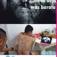 Eliminación de tatuajes en Valencia