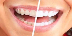 تبيض الاسنان بطرق طبيعية رائعة