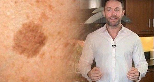 Známý dermatolog odhaluje, jak odstranit pigmentové skvrny tímto jednoduchým trikem