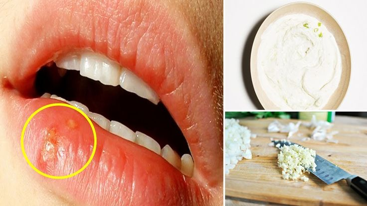 how to get rid of cold sores fast in mouth
