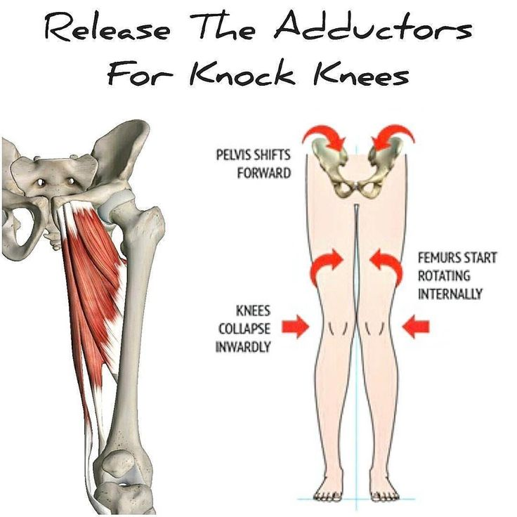 "4,372 Likes, 170 Comments - Vinh Pham (@vinnierehab) on Instagram: ""TIGHT ADDUCTORS = KNOCK KNEES!!! [adductor education] . I posted a while ago a  in which I fixed…"""