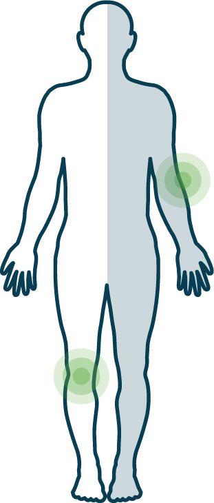 Hier erfahren Sie, wie sich #Psoriasis an verschiedenen Körperstellen auswirkt.