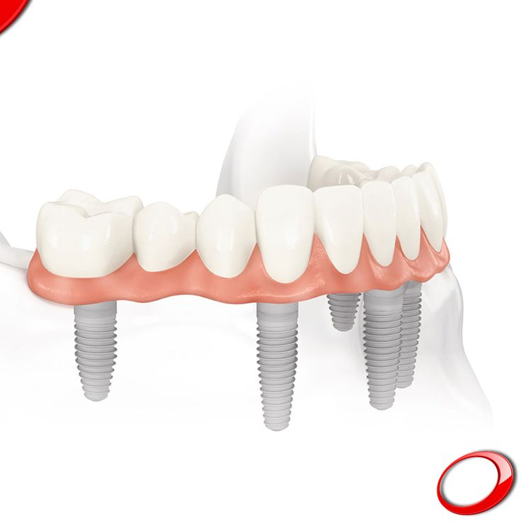 "The main feature of the ""All-on-four"" procedure is simplicity. Book your free, no-strings-attached consultation now! ........................... www.dinp.co.uk (For more info or to schedule a evaluation query, send your contacts by private message) #dentist #implants #smile #clinic #health #healthy #qualityoflife"