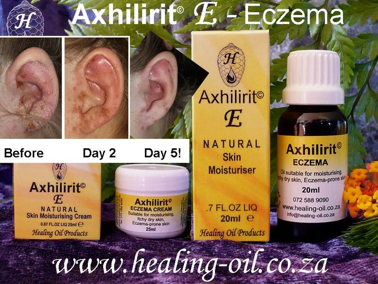 Axhilirit© E - Eczema feedback. Best eczema products in Cape Town, South Africa…