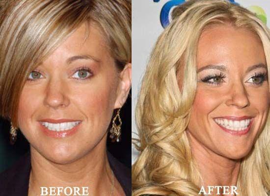 Kate Gosselin Plastic Surgery Photo Kate Gosselin Plastic Surgery