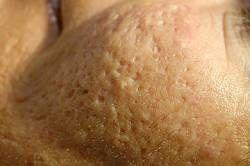 Acné littekens. Wat zijn acnelittekens?  Littekenweefsel ontstaat na beschadiging van de huid. Bij acne wordt deze beschadiging veroorzaakt door de heftige ontstekingsreactie in de huid. Meestal geldt dat er een direct verband bestaat tussen de ernst van de ontsteking en de mate van littekenvorming in reactie daarop. Sommige mensen ontwikkelen echter ook relatief grote littekens op basis van vrij oppervlakkige en kleine acne-ontstekingen.