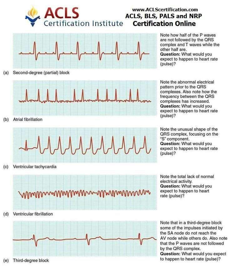 EKG Practice - Practice EKG Strips