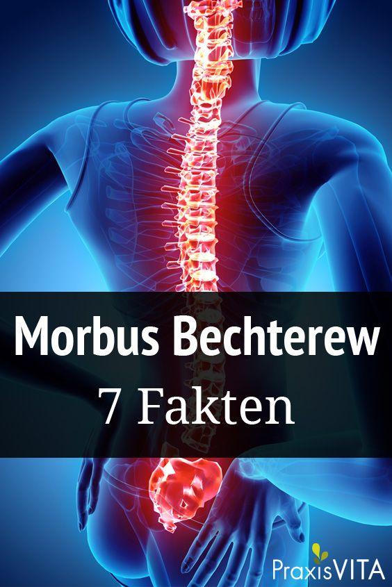 7 Fakten zu Morbus Bechterew: Symptome und Behandlung   Gesund ...