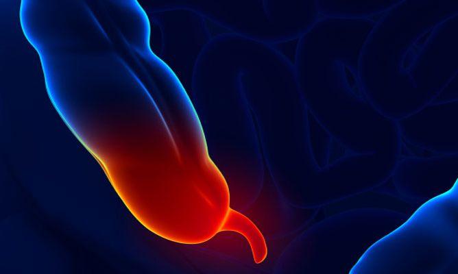APENDICITIS: Relación emocional La apendicitis es una enfermedad en la que se produce una inflamación del apéndice, que provoca un dolor que se irradia...
