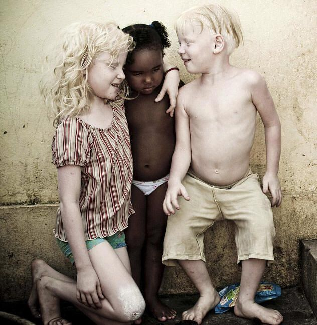 218 best images about Albinism on Pinterest