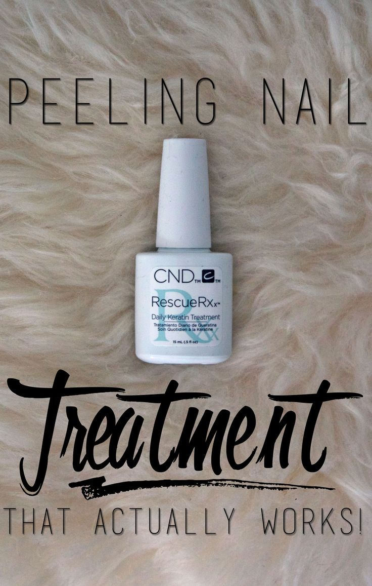 Peeling nail treatment that actually works!