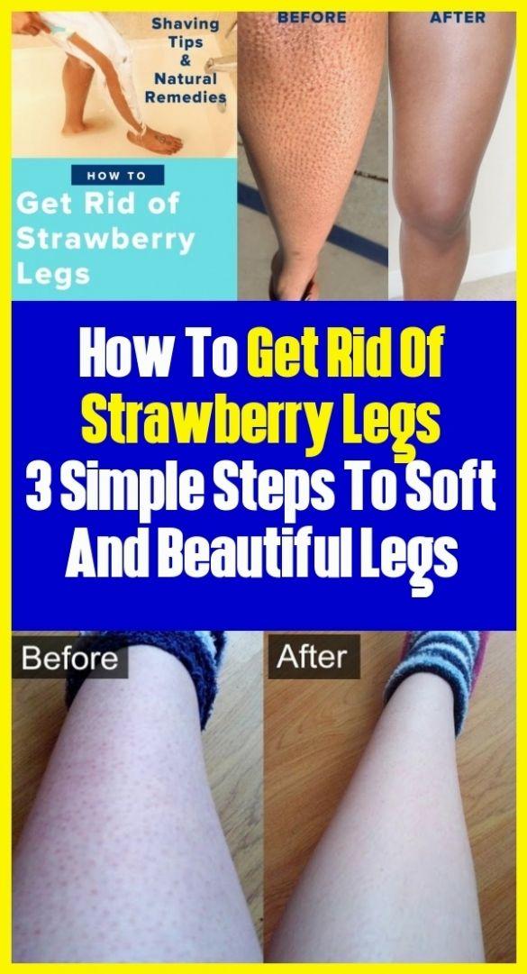 3af2be8316a2698684cef9ceae89f7c1 - How To Get Rid Of Blue Marks On Legs