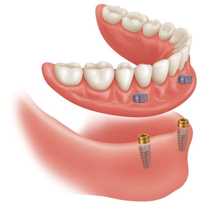 Avantajele și dezavantajele protezelor pe implanturi dentare #dentist #implant