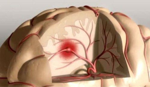 Qu'est-ce que l'ictus ? Comment le prévenir et le détecter ?  L'ictus est une maladie qui affecte les vaisseaux sanguins, qui sont chargés de transporter le sang jusqu'au cerveau. On l'appelle également accident vasculaire cérébral (AVC), thrombose ou embolie.  Il est très important de savoir ce qu'est l'ictus et de le prévenir ainsi que de le détecter à temps, car cette pathologie peut avoir des conséquences très graves, jusqu'à provoquer la mort.