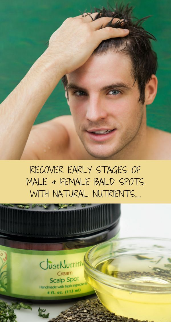 It's already stressful to think and know of that bald spot on your head just sitting there or maybe there are a couple of them in different places. Instead of worrying of how you're going to cover it up with other pieces of your hair every day, why not just try our Scalp Spot Cream which is full of vitamins that may help restore missing hair.