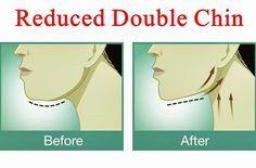 O melhor exercício para você se livrar do indesejado queixo duplo sem cirurgia! | Cura pela Natureza