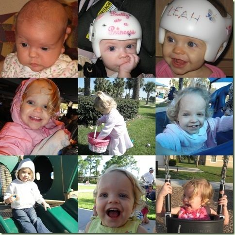 17 Best Craniosynostosis Images On Pinterest Babies