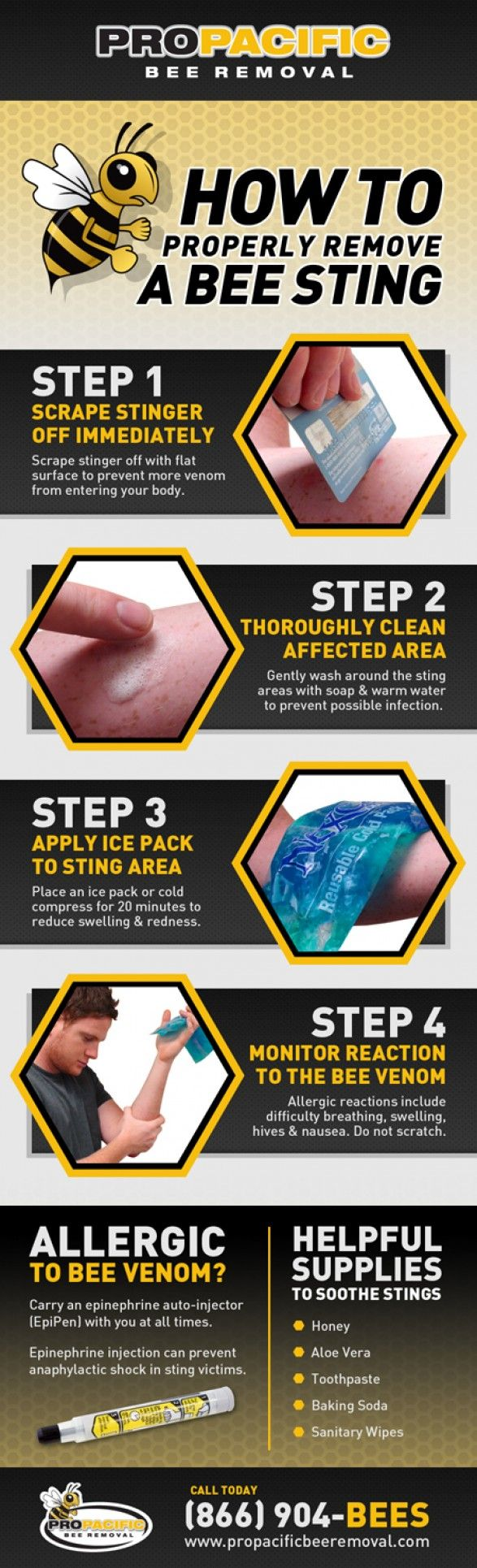 Properly Remove & Treat A Bee Sting - Infographic