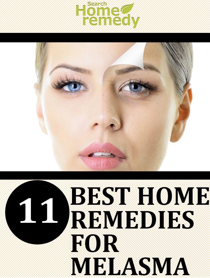 11-best-home-remedies-for-melasma3