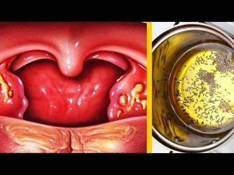 Youtube Remedios Para La Amigdalitis Remedios Para Las Anginas Amigdalitis