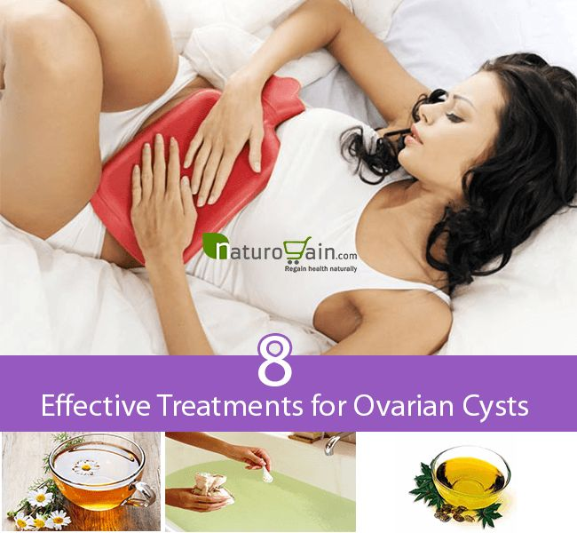 What are the treatments for ovarian cysts?